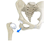 Hip Dislocation