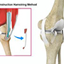 ACL Reconstruction Procedure - Hamstring Tendon