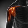 Conventional Shoulder Replacement